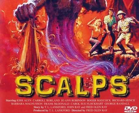 Scalps 1